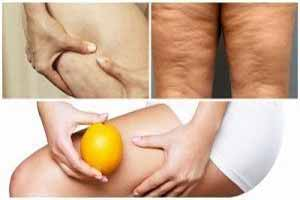 Qué es la Celulitis