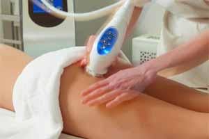 Tratamientos para eliminar la celulitis: powershape
