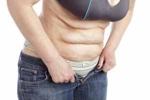 Cómo eliminar la piel de naranja del abdomen